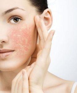 Jenis kulit dan cara merawatnya
