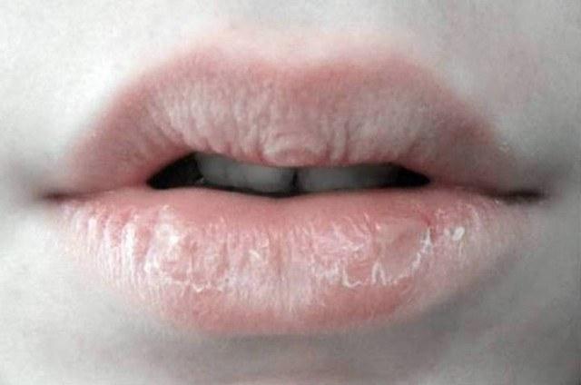 12 Cara  Mengatasi Bibir Kering dan Pecah-Pecah yang Paling Ampuh